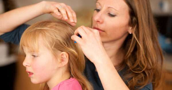 Top rated head lice treatments that actually work | Beanstalk Mums