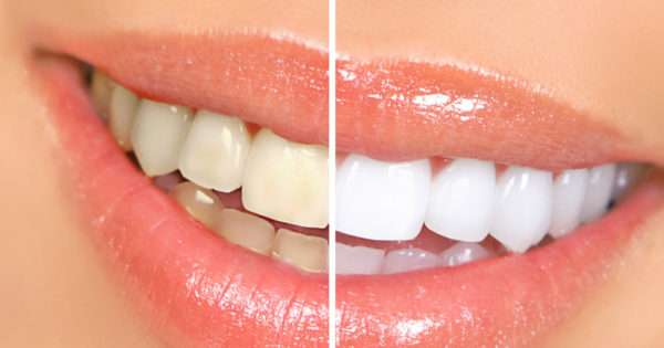 Teeth whitening | Beanstalk Mums